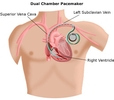 implantable cardioverter defibrillators